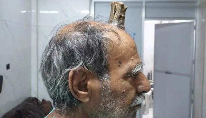 because of rare disease horn growing in this mans head